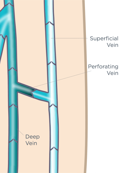 Perforator Vein Anatomy